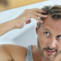 Calvitie : la poudre densifiante pour cheveux